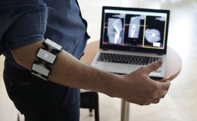 Digitalnega kirurškega asistenta sestavljata programska oprema in elektromagnetna bluetooth zapestnica. FOTO: Leon Vidic