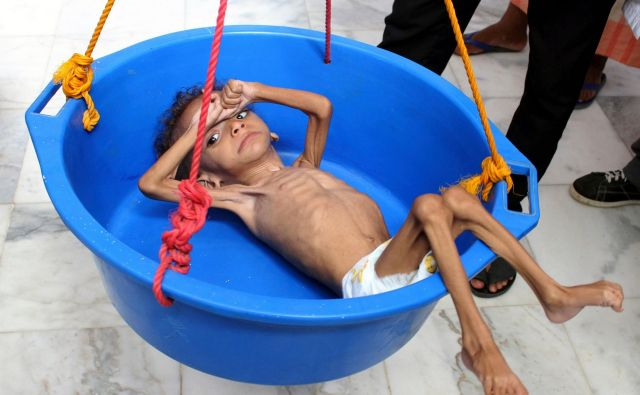 Podhranjen jemenski deček med tehtanjem v bolnišnici v mestu Abs. Foto Essa Ahmed/AFP