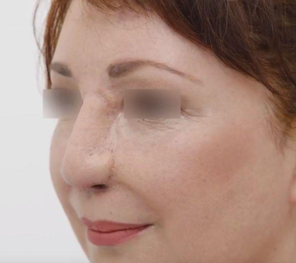 FOTO:Izjemni uspeh slovenske medicine: na podlakti izdelali nos in bolnici spremenili življenje (FOTO in VIDEO)