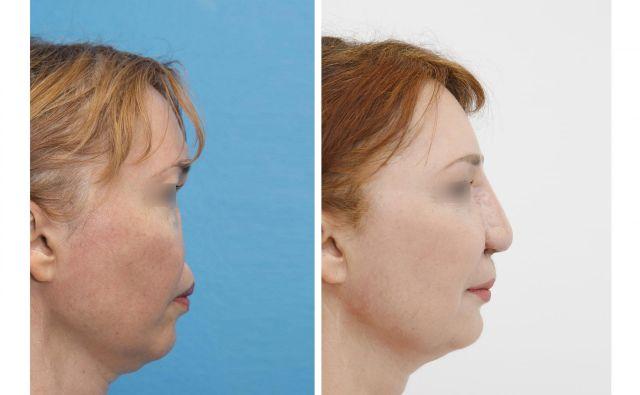 Pacientka priznava, da sprva ni želela, da bi se jo videlo brez nosu, kasneje pa je spremenila mnenje.FOTO: Manuel Hahn, Miha Bernard (UKC Ljubljana)