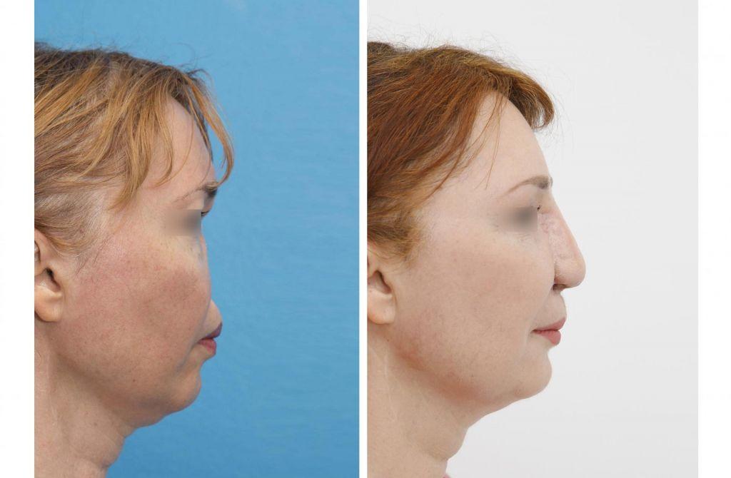 Izpoved pacientke po rekonstrukciji nosu: »Dobesedno sprogramirala sem se za uspeh«
