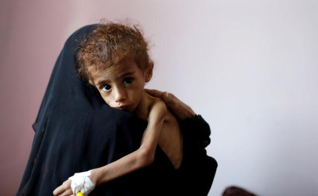 V Jemnu kot posledica vojaškega posredovanja Savdske Arabije na tisoče otrok umira zaradi lakote. Foto Reuters