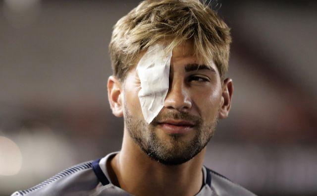 Nogometaš Gonzalo Lamardo ima poškodovano oko, toda vodstvo tekmovanja je od Boce zahtevalo, da vseeno igra. FOTO: AFP