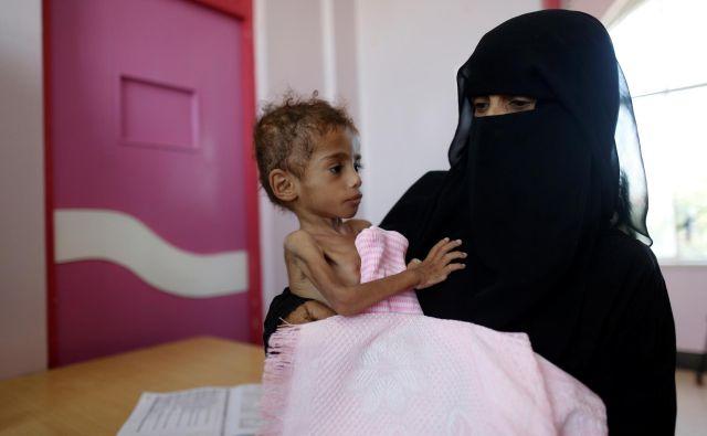 Vojna v Jemnu je povzročila veliko lakoto, zaradi katere naj bi umrlo že 85.000 otrok. FOTO Reuters