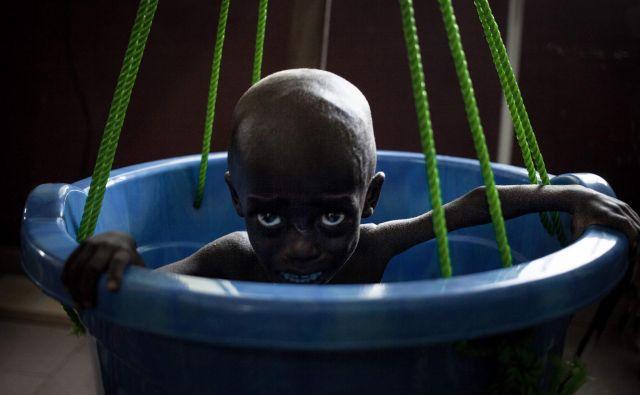 Podhranjena deklica joka med dnevnim kontrolnim tehtanjem na pediatričnem oddelku v Bangui 4. decembra 2018. V Srednjeafriški republiki je umrljivost dojenčkov najvišja na svetu, pri čemer dva od treh otrok ali 1,5 milijona ljudi potrebuje humanitarno pomoč, piše v poročillu UNICEF-a iz leta 2018. Foto Florent Vergnes Afp
