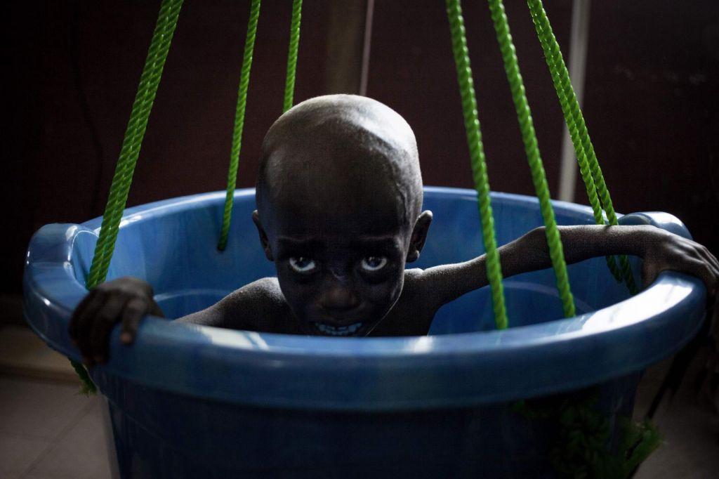 FOTO:Vsak deveti človek je podhranjen