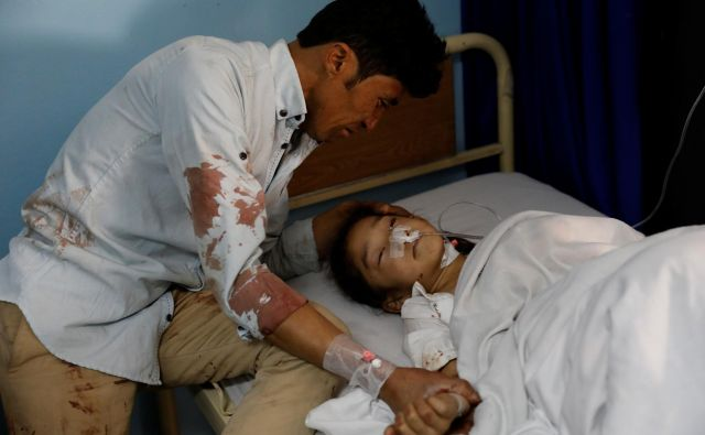 Šestdeset tisoč civilistov je bilo po podatkih ZN od leta 2009 ranjenih v Afganistanu. FOTO: Reuters