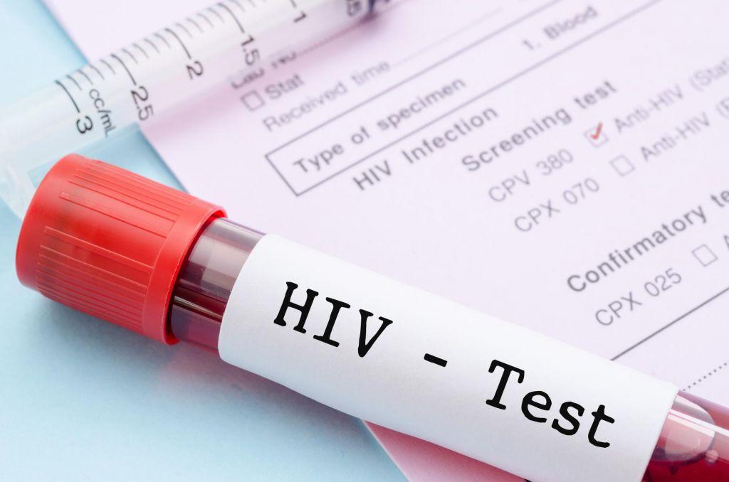 Po presaditvi celic osvobojen aidsa