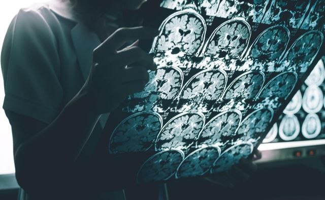 Skupina dr. Jerneja Uleta bo proučevala, kako napake v stikih med proteini in RNK poškodujejo delovanje nevronov. Foto Shutterstock