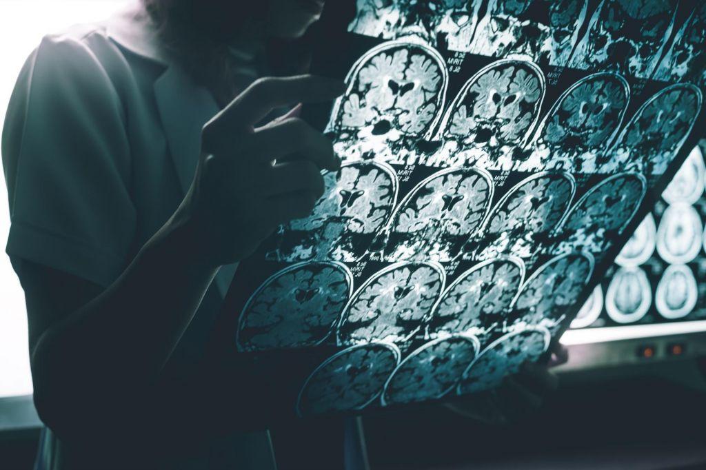 Na sledi napakam, ki usodno poškodujejo nevrone