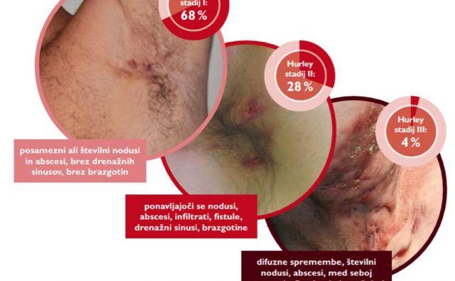 Kožna bolezen HS se razvije v treh stadijih. Foto Arhiv Adrema