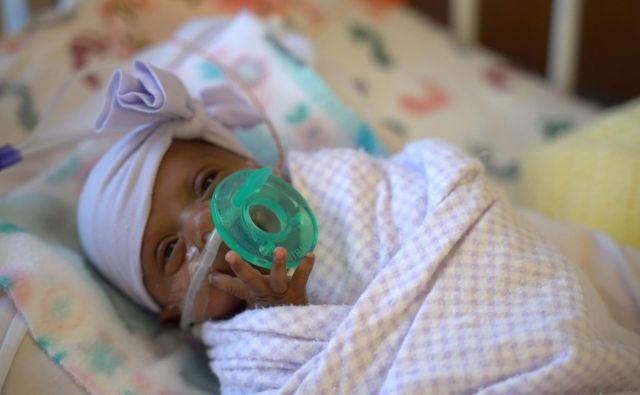 Saybie je lanskega decembra na svet privekala mnogo prezgodaj, v 6. mesecu nosečnosti. FOTO: AFP