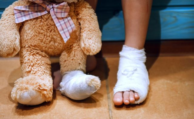 A girl with a broken leg shares her misfortune with a best friend Foto Annashou Getty Images/istockphoto