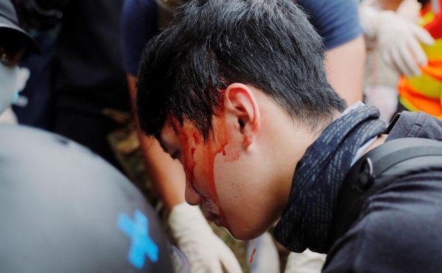 Policija je solzivec uporabila na več območjih. FOTO: Tyrone Siu/Reuters