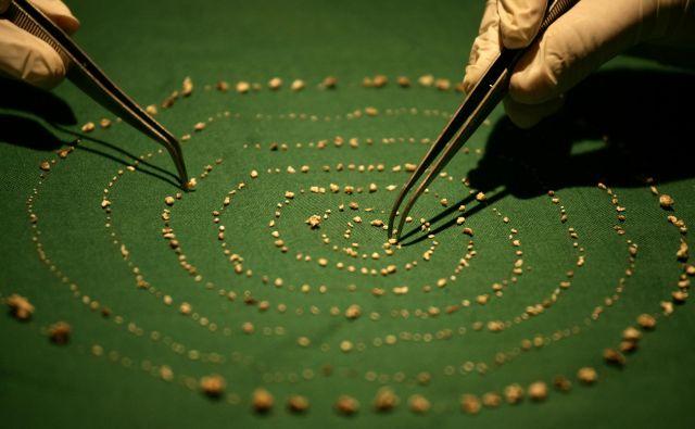 Vseh 526 miniaturnih zob, ki so jih potegnili iz dečkove ustne votline. FOTO: P. Ravikumar/Reuters