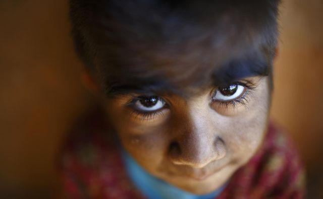 Otrok s hipertrihozo. FOTO: Navesh Citrakar/Reuters