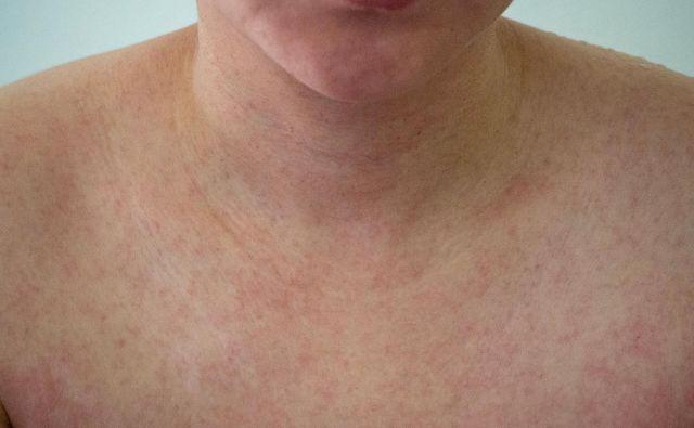 Bolnik z ošpicami je kužen že približno štiri dni pred pojavom izpuščaja in še štiri dni po pojavi. FOTO: Shutterstock