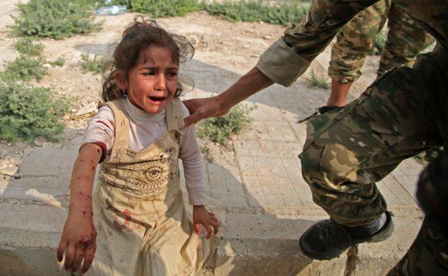 Sirski deklici oskrbujejo rane v sirskem obmejnem mestu Tal Abyad, ki so ga prejšnji teden zasegle turške sile. FOTO: Bakr Alkasem/AFP