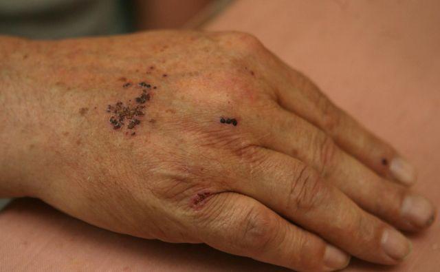Nasilje nad starejšimi in tudi med njimi je vsakodnevni problem. Foto: Dejan Javornik