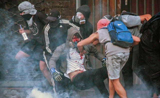 Spopadi s policijo se na množičnih protivladnih demostracijah v glavnem mestu Čila po enem mesecu še vedno nadaljujejo. Tokrat je v protestnike zapeljal avto in poškodoval več ljudi. Enega od njih prijatelji nosijo v varno zavetje. FOTO: Edgard Cross-buchanan/Afp<br />