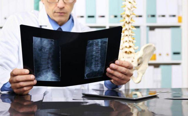 Glavni mehanizem nastanka hernije diska v ledvenem delu so napačni gibalni vzorci. Foto: Shuterstock