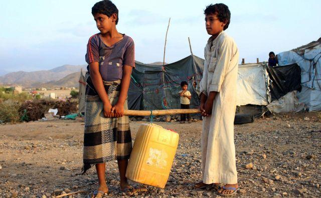 Otroci so največje žrtve jemenske vojne. FOTO: Essa Ahmed/AFP
