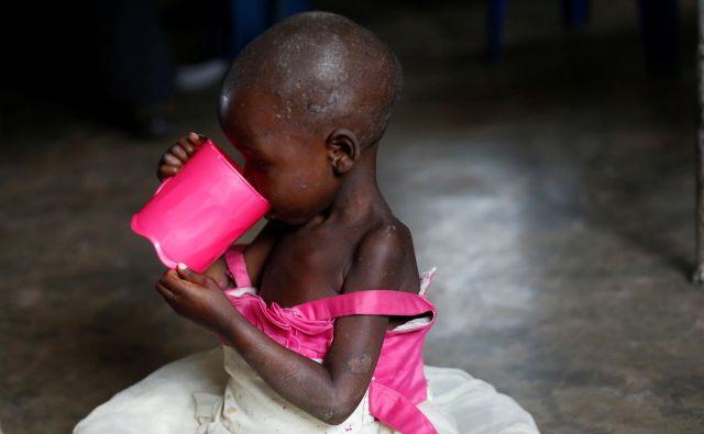 Prehransko najbolj ogroženi so ljudje, ki živijo na področjih, kjer divjajo vojne in tam, kjer so posledice podnebnih sprememb najhujše. Fotografije Reuters