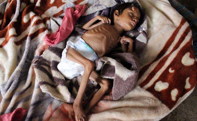 Salwa Ibrahim, petletna deklica, ki trpi zaradi akutne podhranjenosti, saj je težka lvsega tri kilograme, spi na postelji v improvizirani hiši v jemenski provinci Hajjah. Zdravstveni sistem države se razpada že odkar je leta 2014 izbruhnila vojna. Več kot dve tretjini,približno 24 milijonov prebivalcev, potrebuje pomoč za preživetje. FOTO: Essa Ahmed/Afp