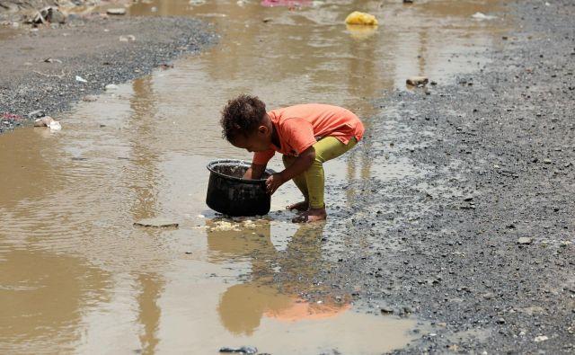 Stotisočim jemenskim otrokom grozi smrt zaradi lakote.<br /> FOTO: Khaled Abdullah/Reuters