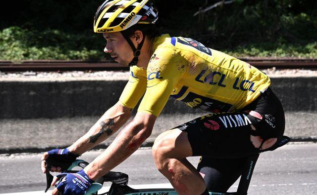 Primož Roglič si je pri padcu v 4. etapi kriterija Dauphine posnel kar nekaj kože. FOTO: Anne-Christine Poujoulat/AFP
