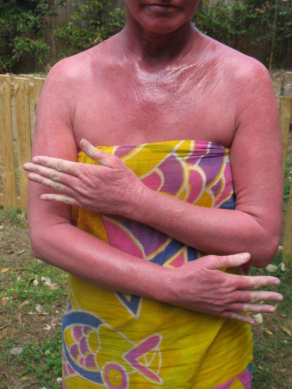 Sindrom rdeče kože: »gorenje« pri živem telesu