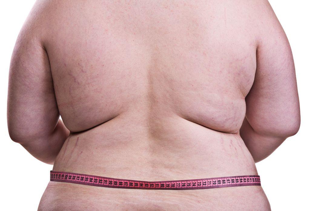 Mastne kalorije: Bolje kak kilogram preveč kot premalo?
