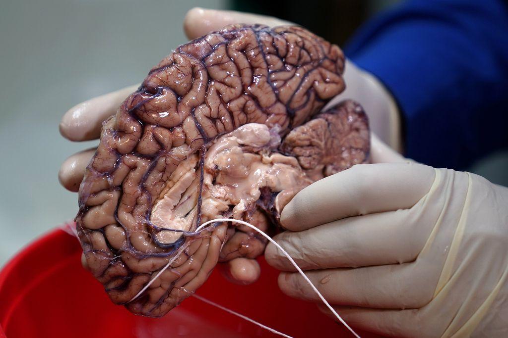 Banka človeških možganov