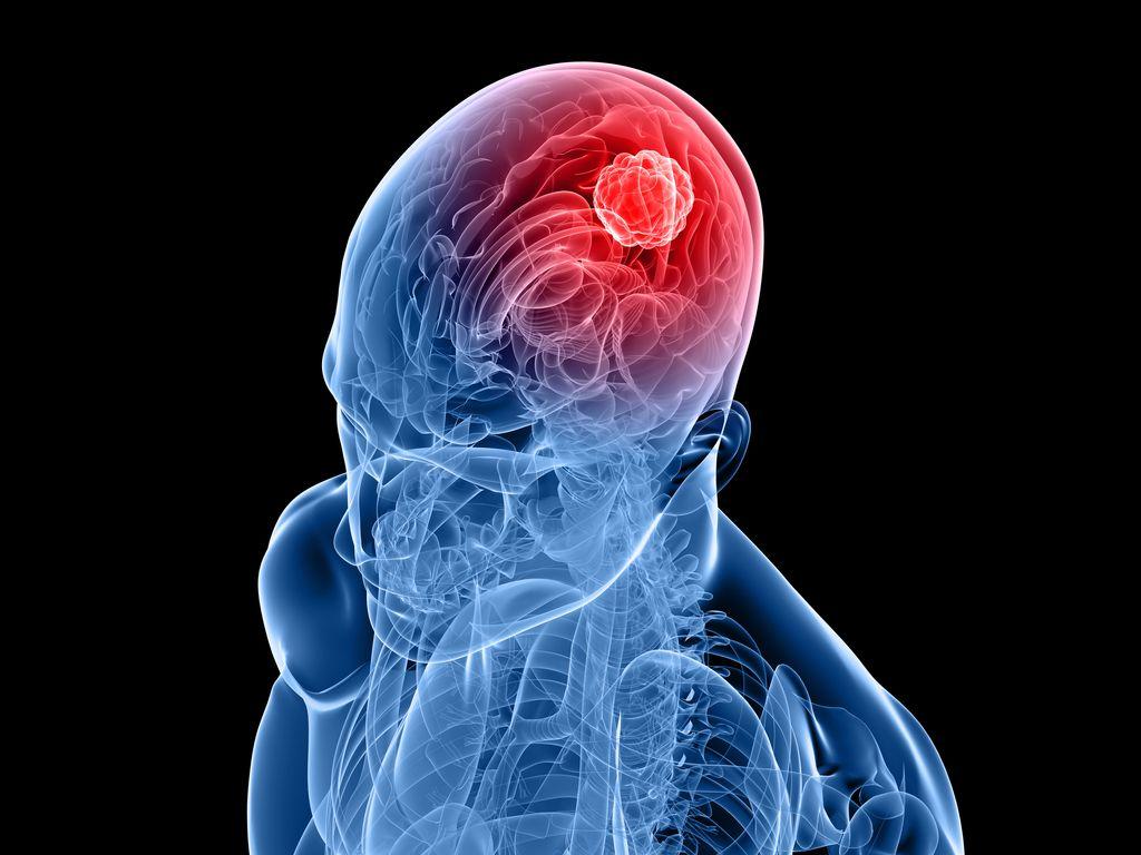 Nova platforma za raziskovanje raka na možganih